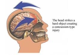 concussion signs of concussion how to prevent head injury winter sports PragmaticMom Pragmatic Mom http://PragmaticMom.com Education Matters