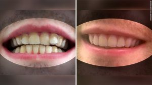 College student makes own invisalign