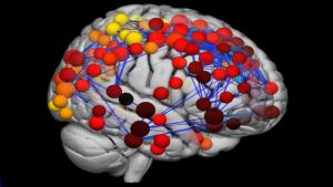 concussion in brain