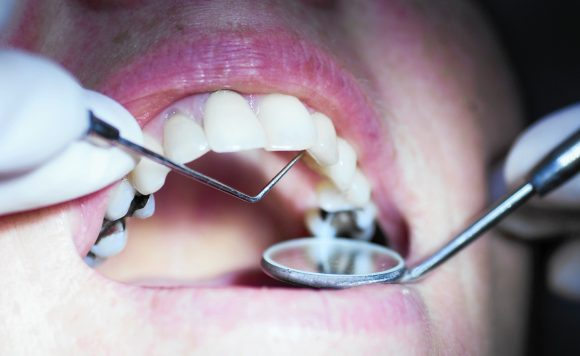 6 New Advances in Dentistry You Need To Know About